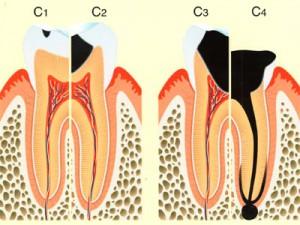 虫歯進行1