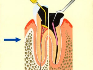 虫歯進行2