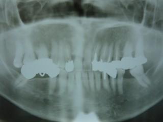なぜ予防歯科が必要なのでしょう